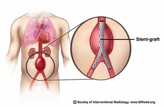 AORTIC STENT GRAFT (THORACIC AND ABDOMINAL)