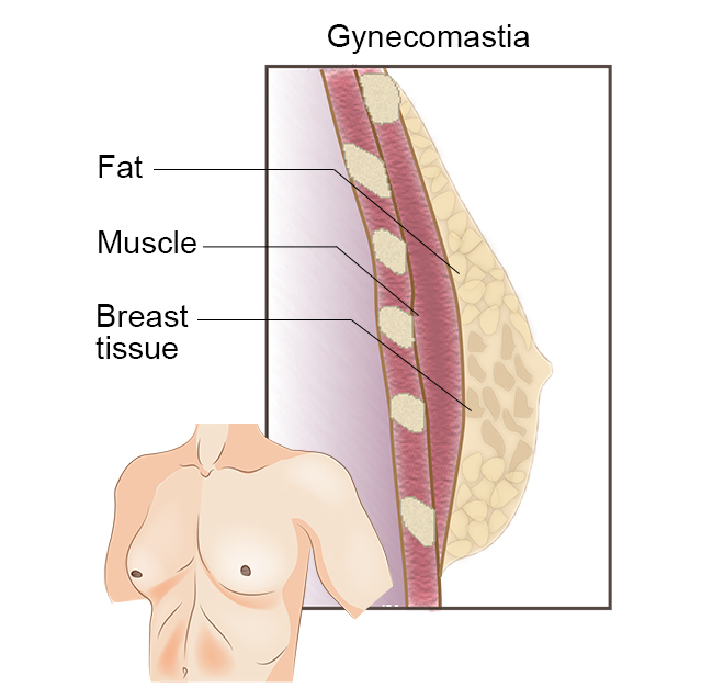 Gynecomastia CRL Women's Imaging