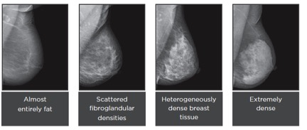 Breast Density Mammogram - What is breast density and why is it important?